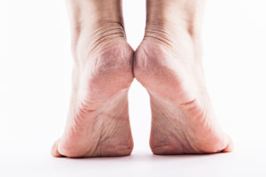 Cracked and dry skin on feet like this can be treated with regular baths